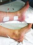 riabilitazione pelvica