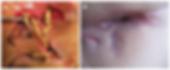 Risonanza magnetica pelvica
