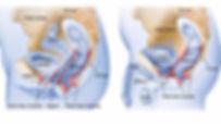 riabilitazione perineale