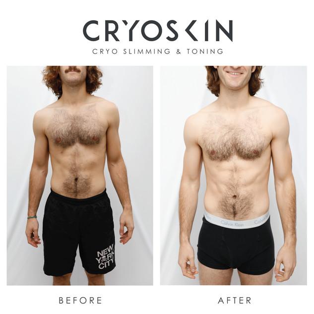 Cryoskin_BA_IGPost -12.jpg