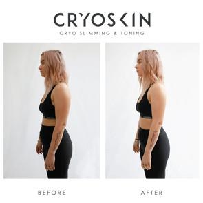 Cryoskin_BA_IGPost -10.jpg