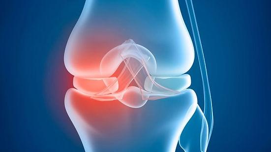 arthritis-pain.jpg