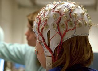 Can Cannabis Treat Epilepsy?