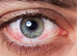 How Cannabis Causes 'Red Eye'