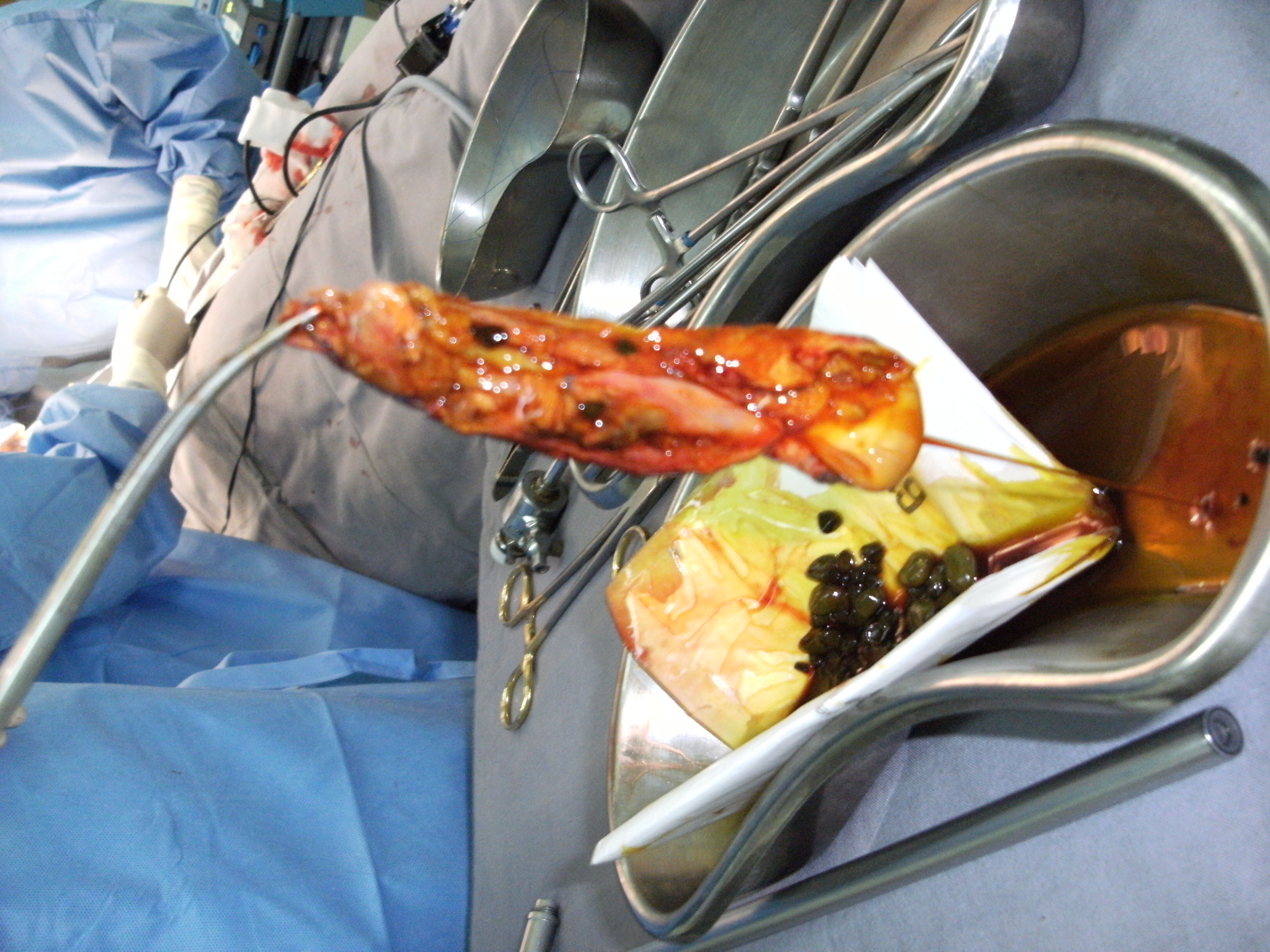 Gallbladder removed with stones