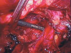 Dissection of Inguinal Cord