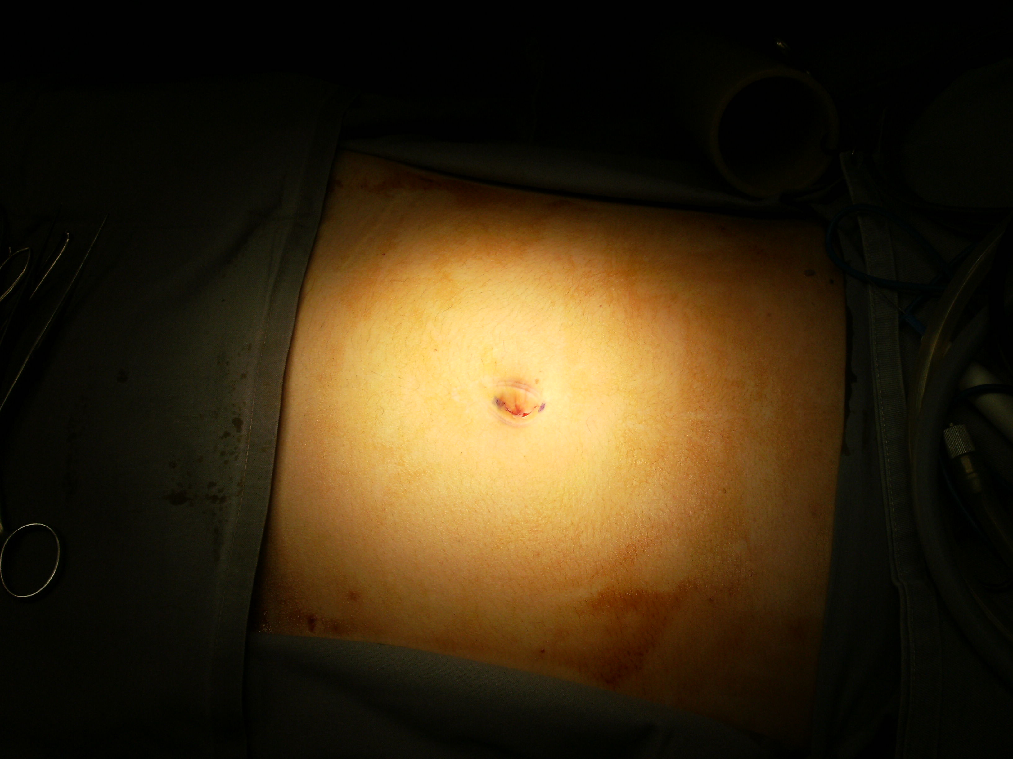 Incision marked within umbilicus