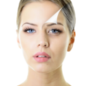 Chemical Peel 2nd Photo.png