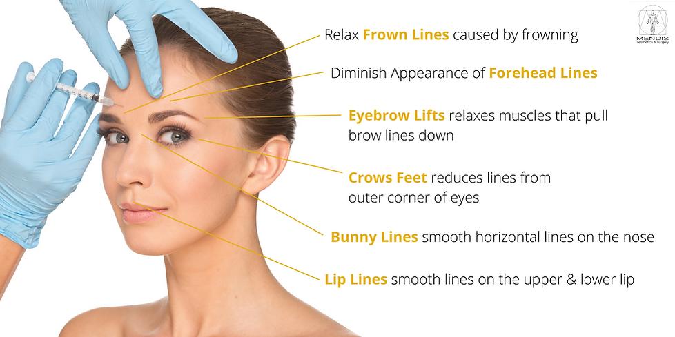 Botox Singapore: Mendis Aesthetics Botox Services