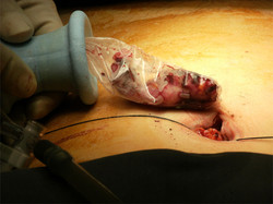 Appendix being removed