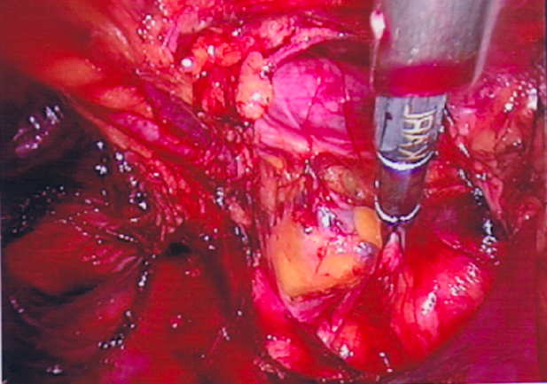 Dissection of Direct Inguinal Hernia