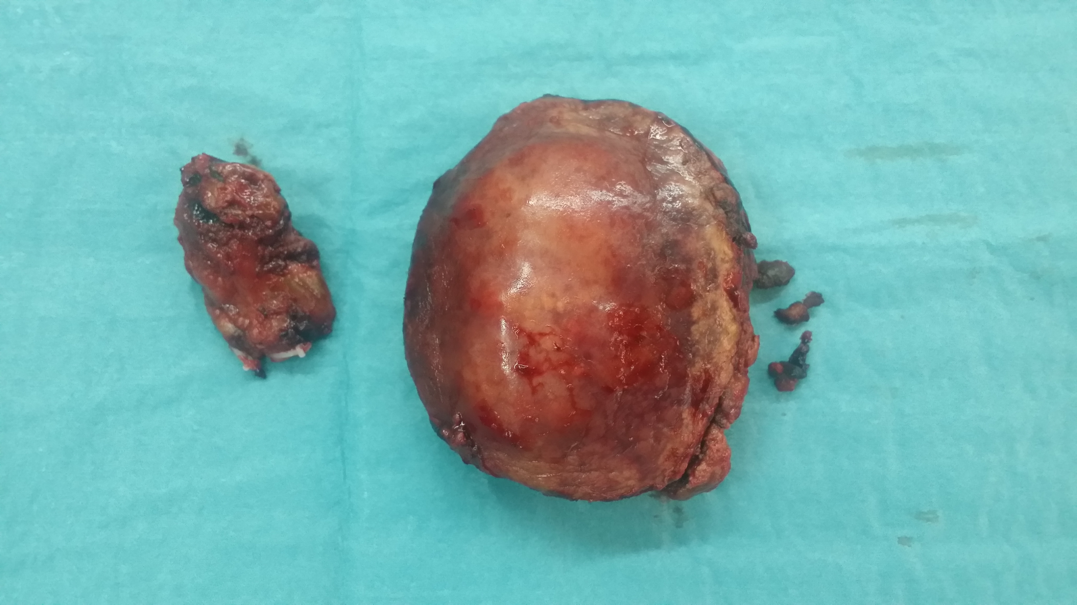 Liver Resection Specimen