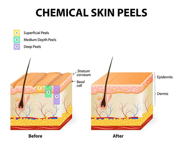 Chemical Peel Photo 2.jpg