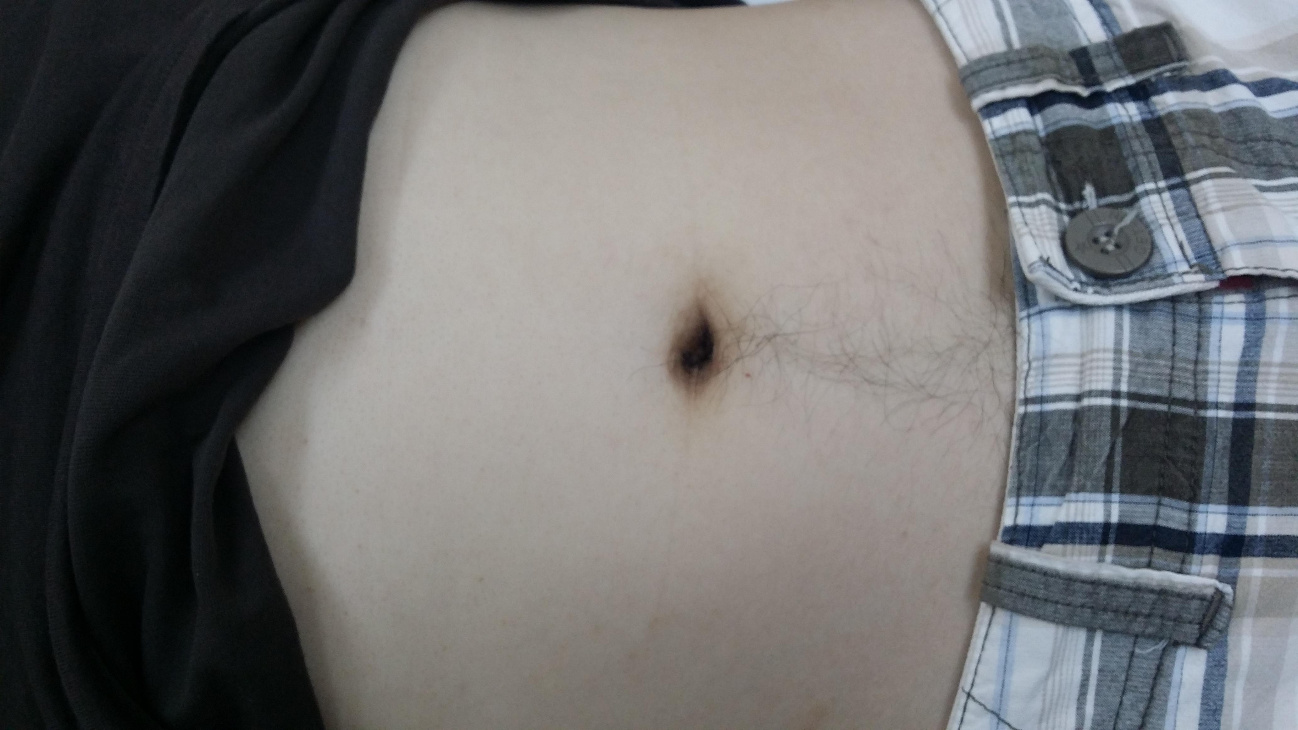 SILS Scar in 3 Months