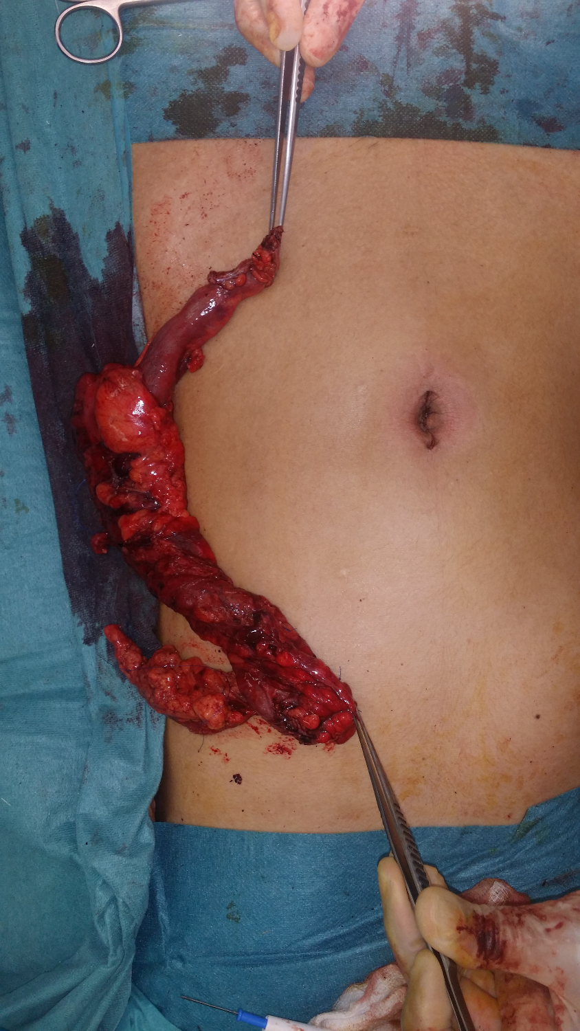 SILS right hemicolectomy_edited_edited