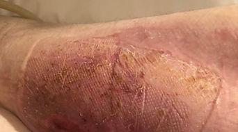 patient-1-left-leg-after.jpeg