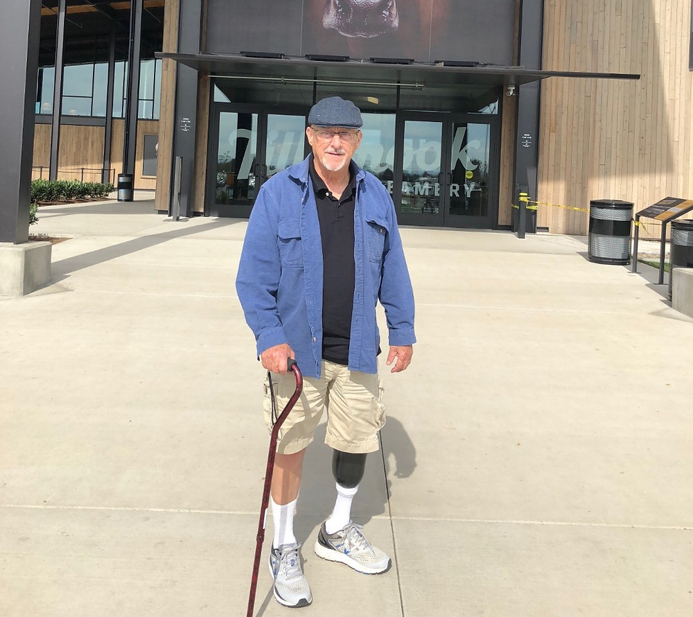 Don is standing firm with his prosthetic.