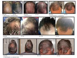 hair-prp-website-1024x780
