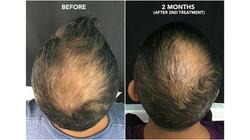 prp_hair_loss-1296x728-slide1