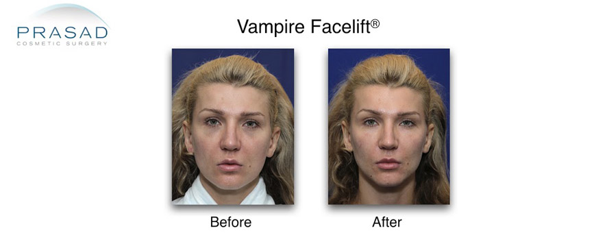 Vampire-Facelift-header