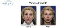 Vampire-Facelift-header