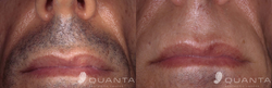 Hair-Removal-Upper-Lip-2-Before_After-Pronto