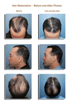 Hair-Transplant-2