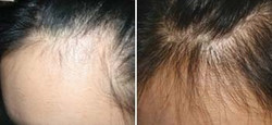 derma-roller-hair-loss