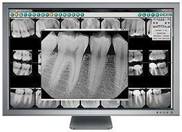 DX_FMXwEnlargement-Monitor413x300-300x21