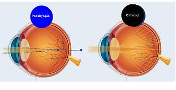 cataract.png