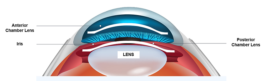 lens implant.png