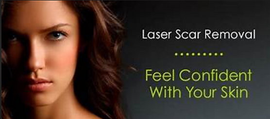 Painless Laser Scar Removal