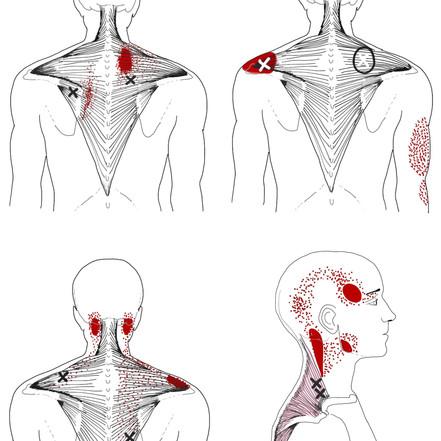 Les trigger points ou noeuds musculaires, comment s'en débarrasser ?