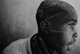 Foto iconica James Nachtway guerra civile Rwanda anni 90 - Il tuo biografo