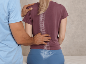 Can Chiropractic Care Help People Who Suffer From Scoliosis?