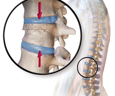 Chiropractic Care For Compression Fracture
