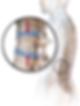 Blausen_0250_CompressionFracture_Vertebr