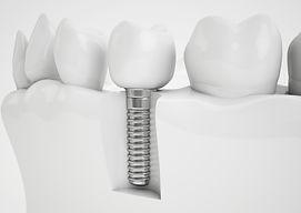 Dental implant.jpg