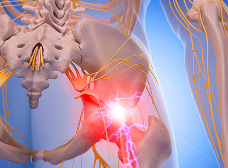 HOW NON-SURGICAL SPINAL DECOMPRESSION CAN HELP WITH SCIATICA PAIN