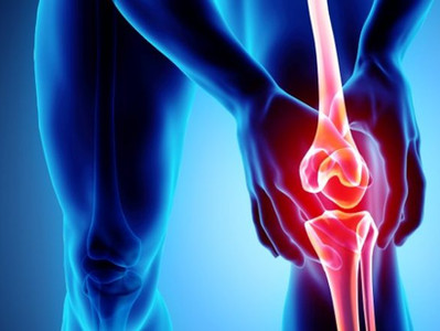 What to Do When your Osteoarthritis Flares Up
