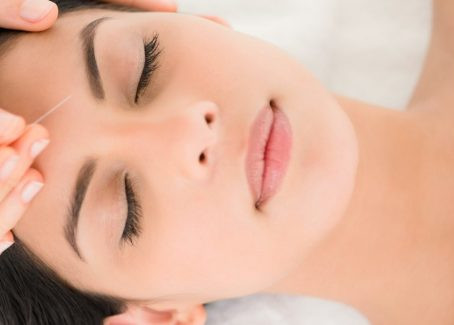8 Benefits of Acupuncture for Facial Rejuvenation