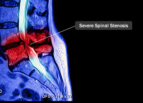 SPINAL DECOMPRESSION FOR STENOSIS