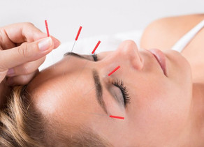 Acupuncture for Migraine and Headache Pain