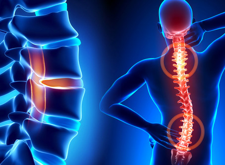 Non-Surgical Spinal Decompression for Degenerative Disc Disease