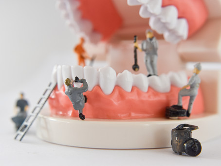 HOW TO PROPERLY CLEAN DENTURES
