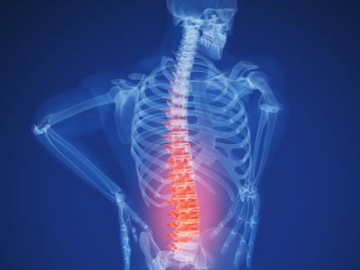 Can a Chiropractor Help With a Herniated Disc?