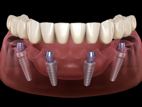 7 REASONS WHY YOU SHOULD REPLACE MISSING TEETH WITH DENTAL IMPLANTS
