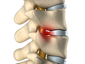 How Chiropractic Care Can Help With Herniated Disc