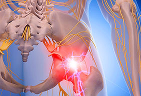 sciatica pain los angeles.jpg