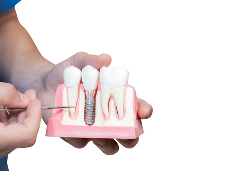 Replacing All Your Teeth: Know You Options
